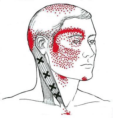 1 Big tip for cervicogenic headaches