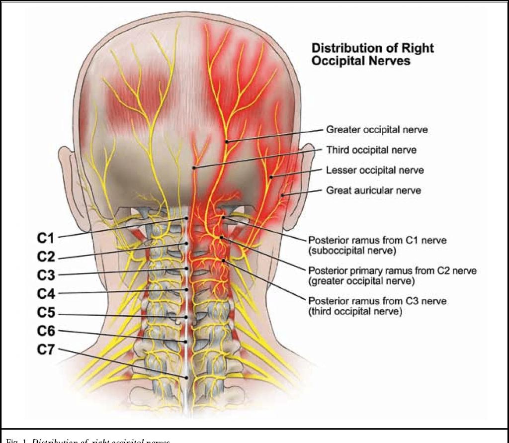 SUNCT Headaches Syndrome