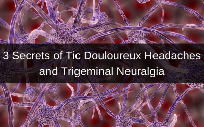 3 Secrets of tic douloureux headaches and trigeminal neuralgia