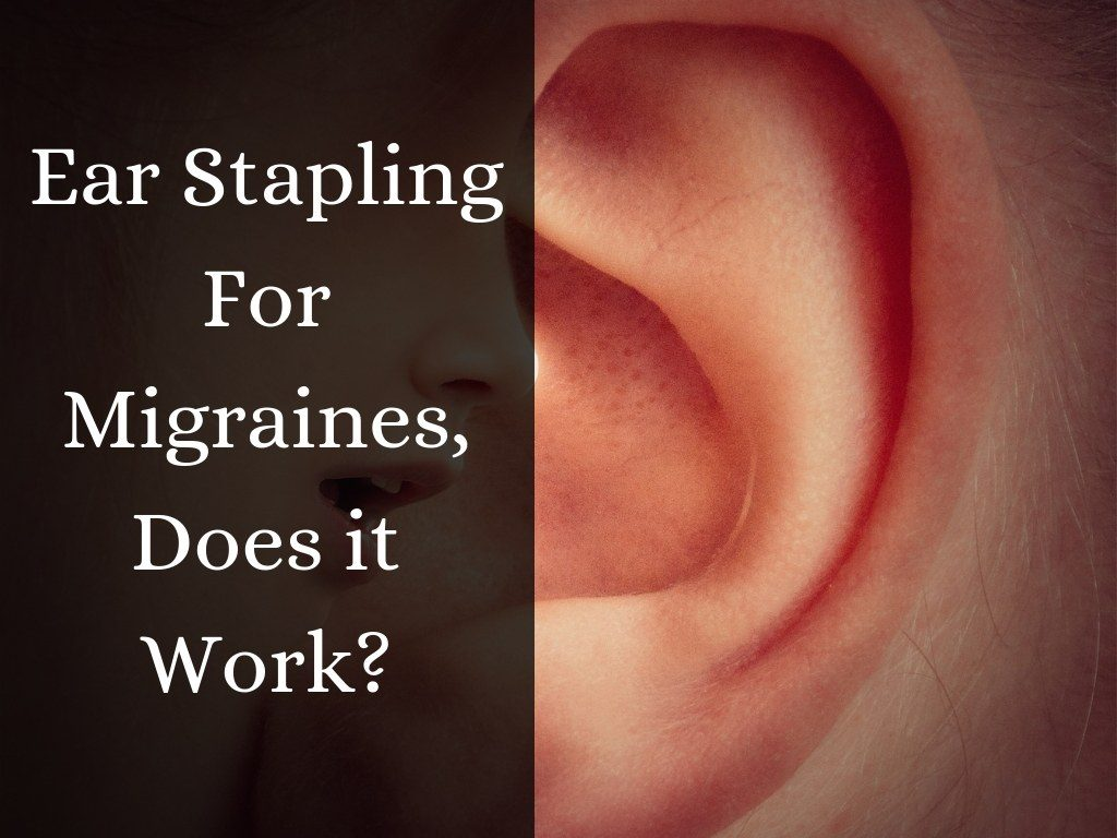 Ear stapling for migraines