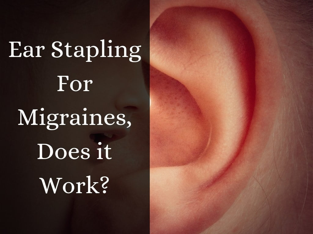 Ear Stapling for Migraines, Does it Work?